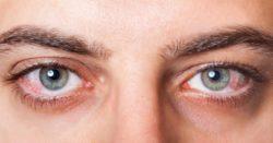 Ngăn ngừa chứng khô mắt để tránh rối loạn thị lực khi về già
