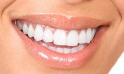 Mẹo tự lấy cao răng đơn giản ngay tại nhà