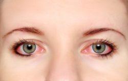Cách chữa bệnh đau mắt đỏ nhanh nhất tại nhà
