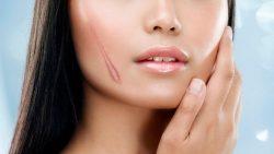 Review các loại kem trị sẹo lõm tốt nhất hiện nay