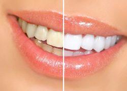 Top 5 loại kem trắng răng cho gia đình bạn